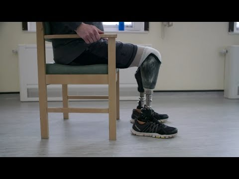 The WoW Show – Allied Health Professional Team and Prosthetic Rehabilitation